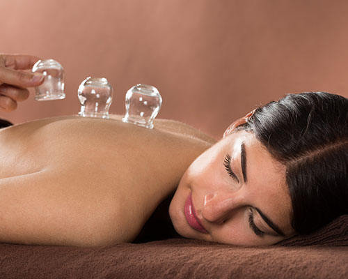 Cupping Treatment in Progres